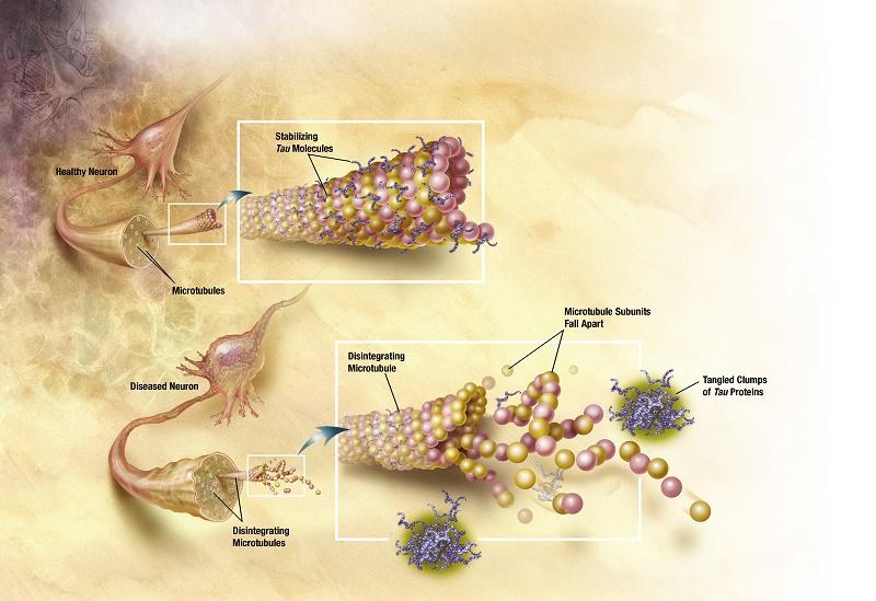Farmaco contro il cancro cura anche demenza senile e Alzheimer