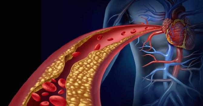 Come combattere il colesterolo