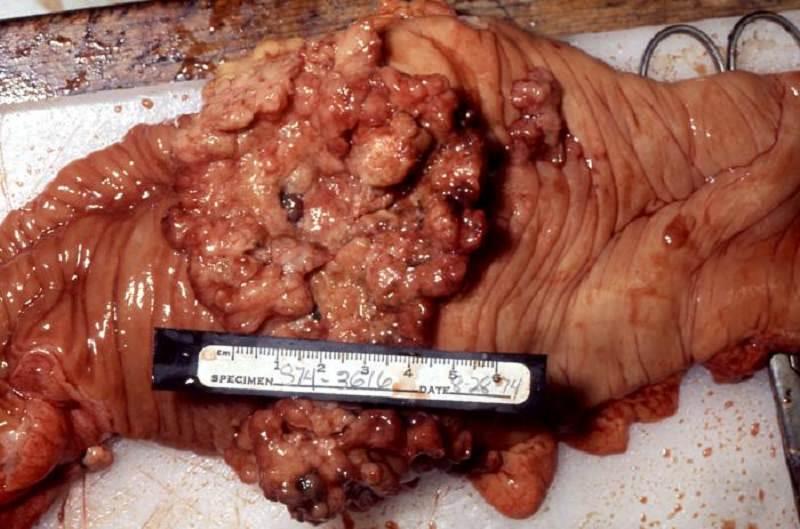 Trattamento laparoscopico del carcinoma colo-rettale