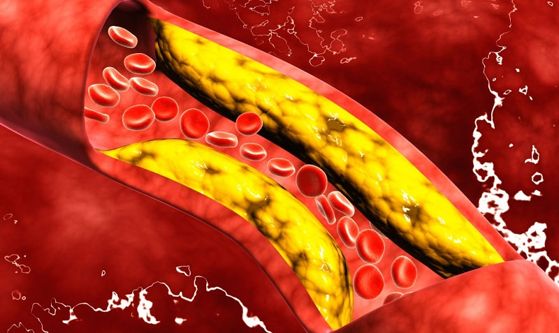 Il colesterolo alto: quando controllarsi e come curarlo