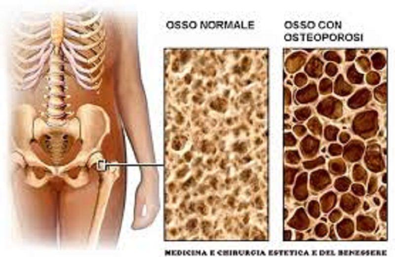 Osteoporosi e artrite reaumatoide