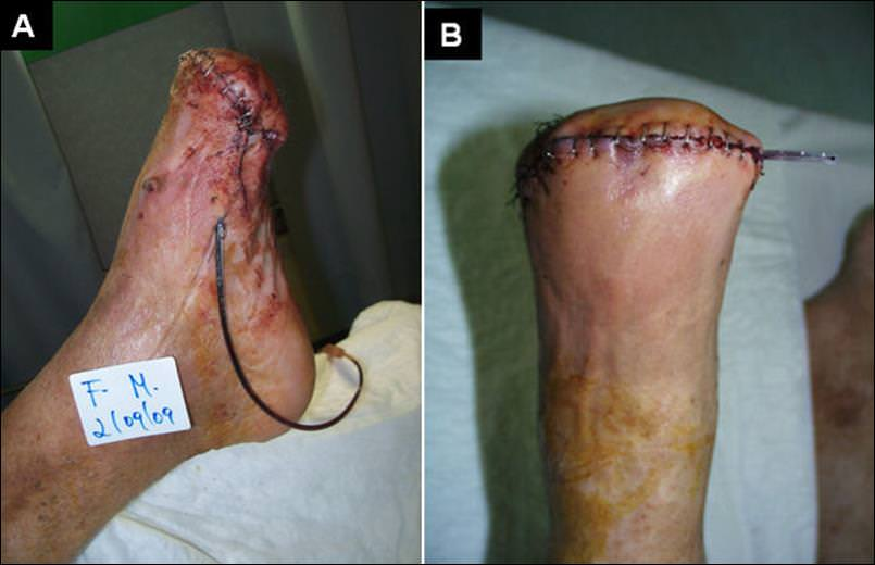 Management del piede diabetico infetto