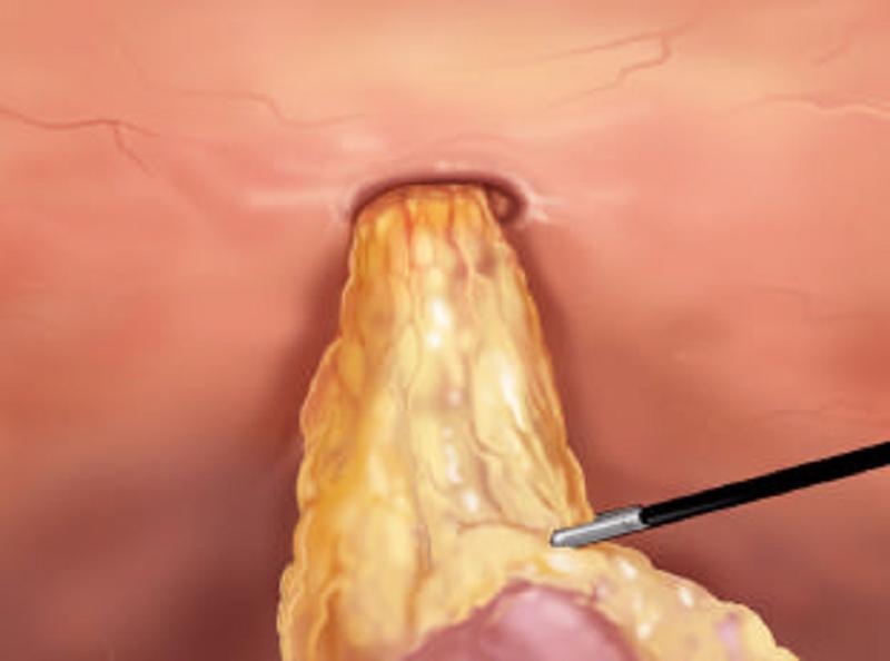 Trattamento laparoscopico del laparocele
