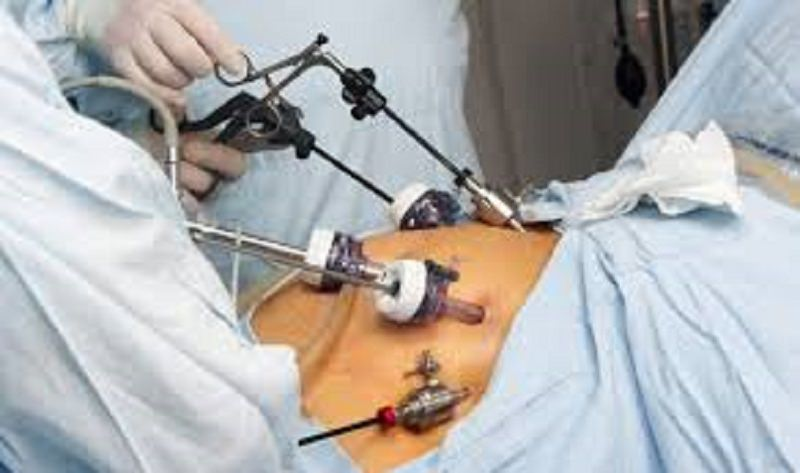 Trattamento chirurgico della malattia diverticolare