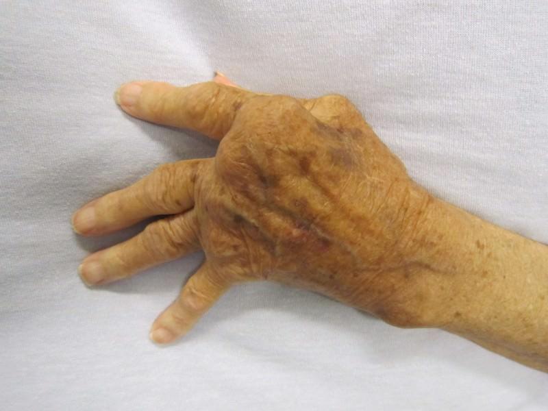 Malattie reumatiche, importante impatto sociale
