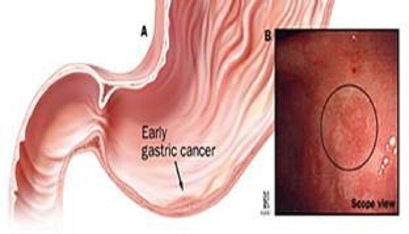 Il carcinoma gastrico