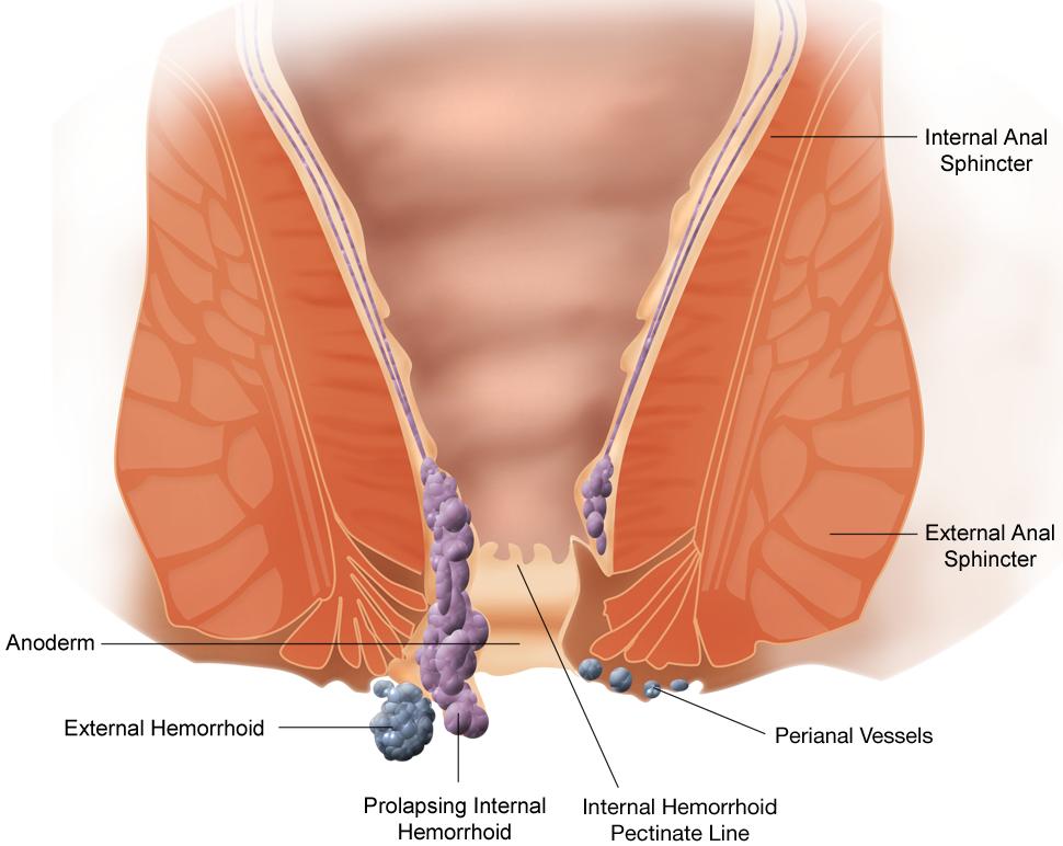 Malattia emorroidaria