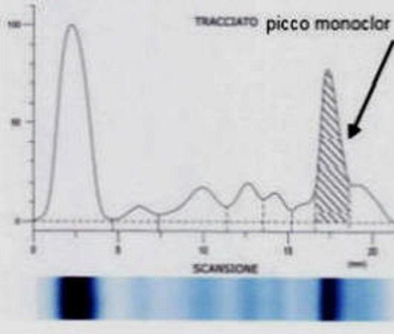 Le gammapatie monoclonali