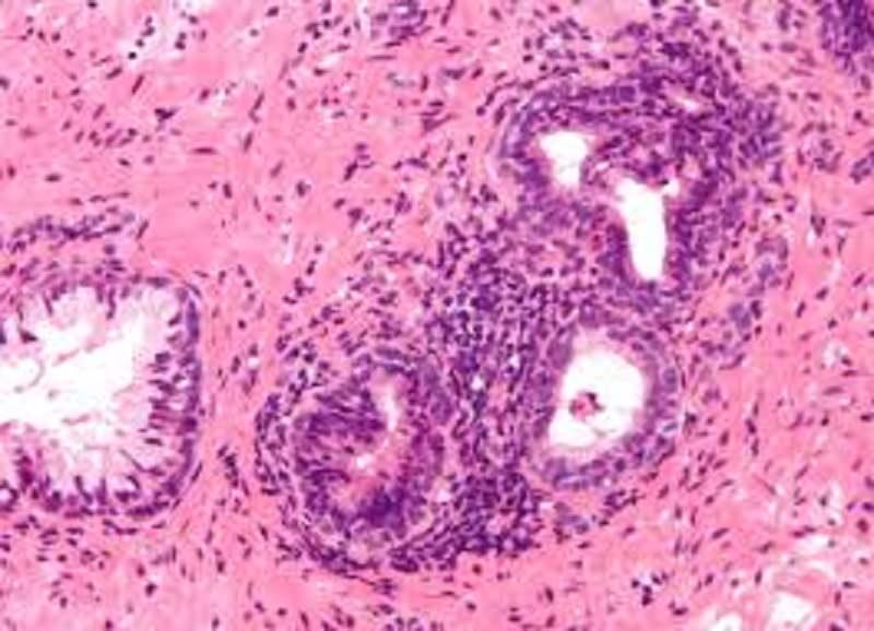 trattamento della prostata calcificato