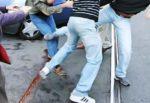 Aggredisce 32enne causandogli fratture, prognosi di 45 giorni: 19enne arrestato in Germania