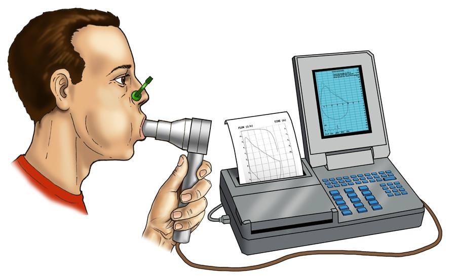 Spirometria non sempre obbligatoria nella bronchite cronica