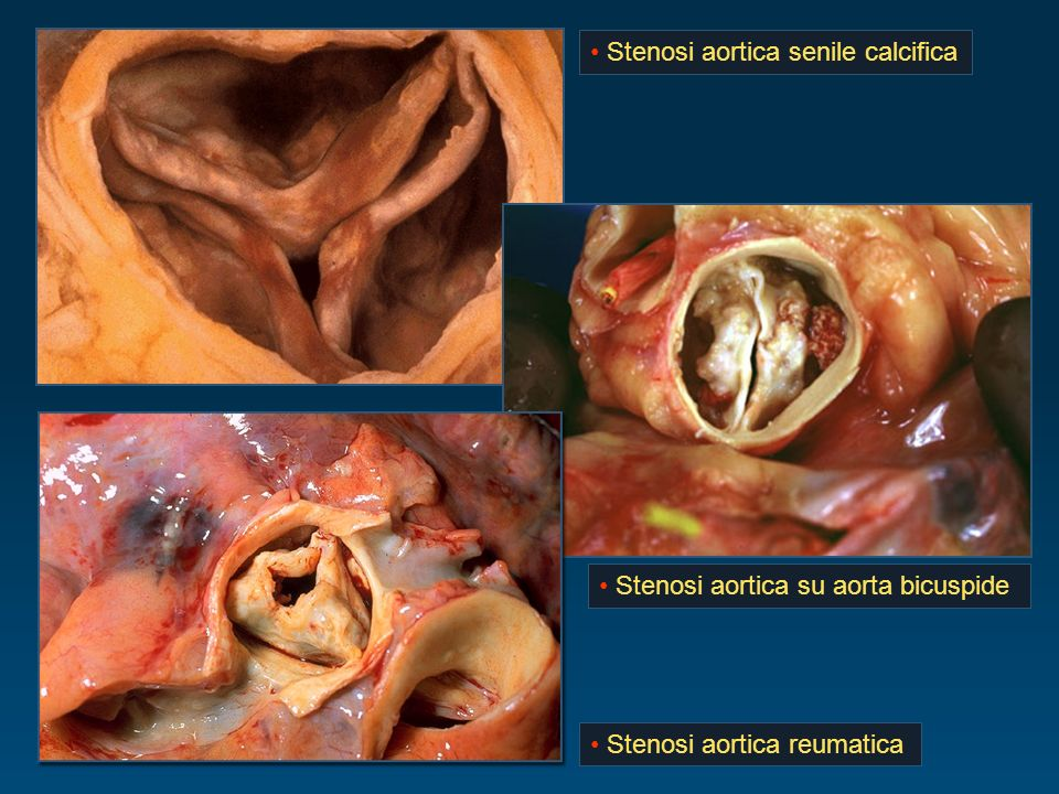 Stenosi aortica, cosa è e come si manifesta