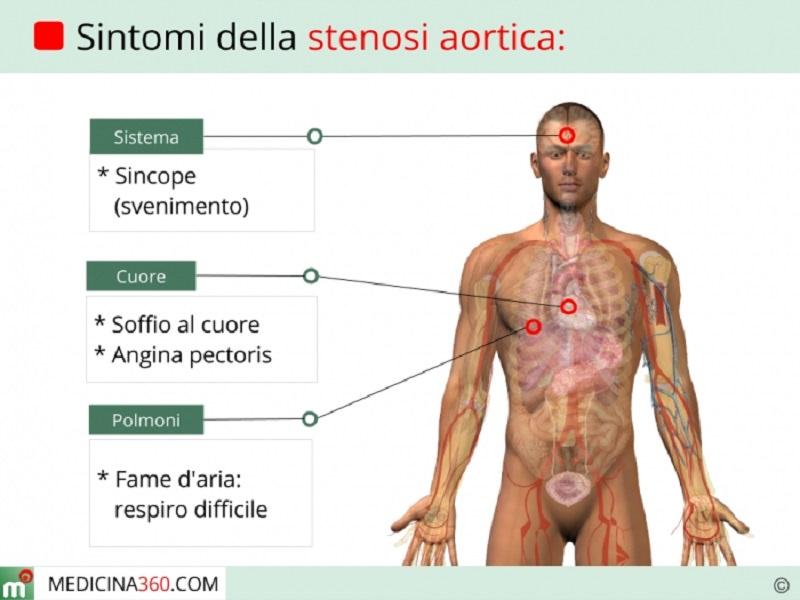 Il trattamento della stenosi aortica