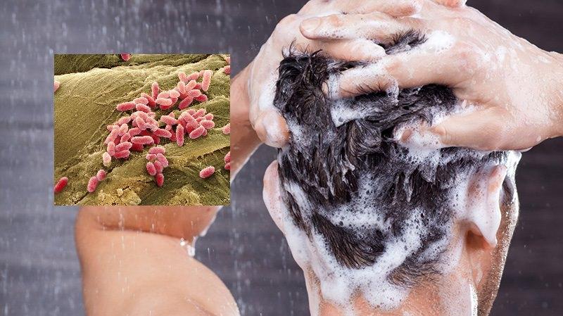 """Batterio """"killer"""" nella lozione per capelli, contaminata da """"Pseudomonas Aeruginosa"""". Ritirata dal mercato"""