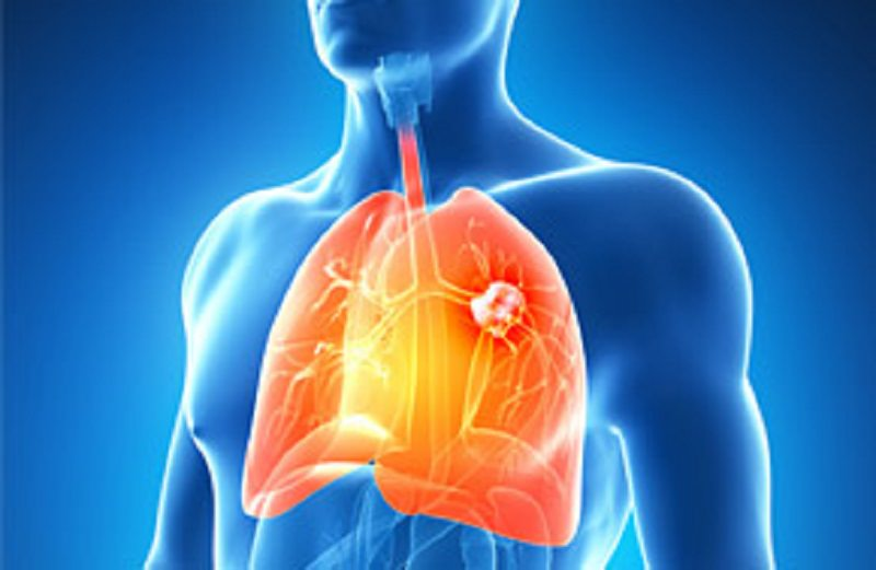 Tumori ai polmoni, 3mila all'anno in Sicilia: a Messina il Coronavirus non ferma le cure ai pazienti oncologici