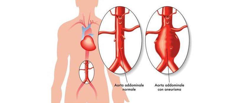 Ectasia ed aneurisma dell'aorta ascendente