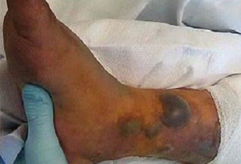"""Bagno al mare dopo il tatuaggio, 31enne muore per un batterio """"mangia carne"""""""
