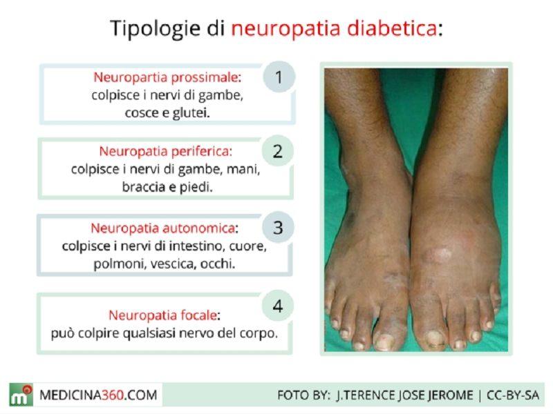 Neuropatia diabetica periferica ed approccio diagnostico-terapeutico