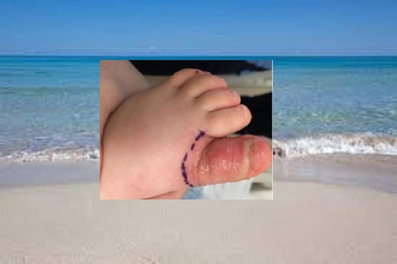 Pipì di cane in spiaggia, bimba di 18 mesi contrae infezione rischiando l'amputazione dell'alluce