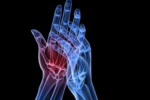Artrite reumatoide: obesità primo fattore negativo per le donne