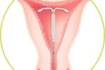 IUD: dispositivo intrauterino