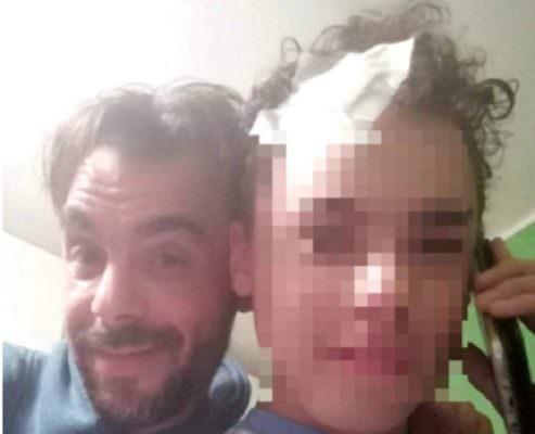 Continua la battaglia di Seby, 15enne catanese effetto da tumore al cervello: radioterapia sperimentale a Tel Aviv