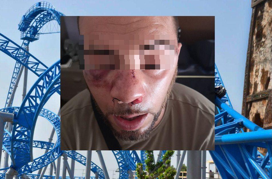 """Violenta aggressione a Etnaland, giovane pestato dal branco: naso rotto e lividi al volto. Russello: """"Episodio inconcepibile"""""""