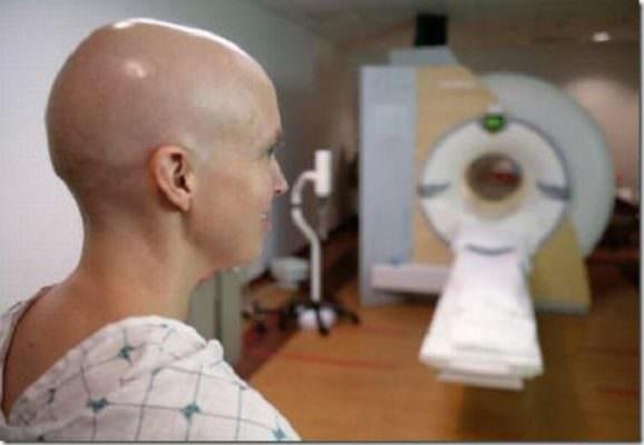 Malati oncologici, niente contributi in Sicilia per le parrucche