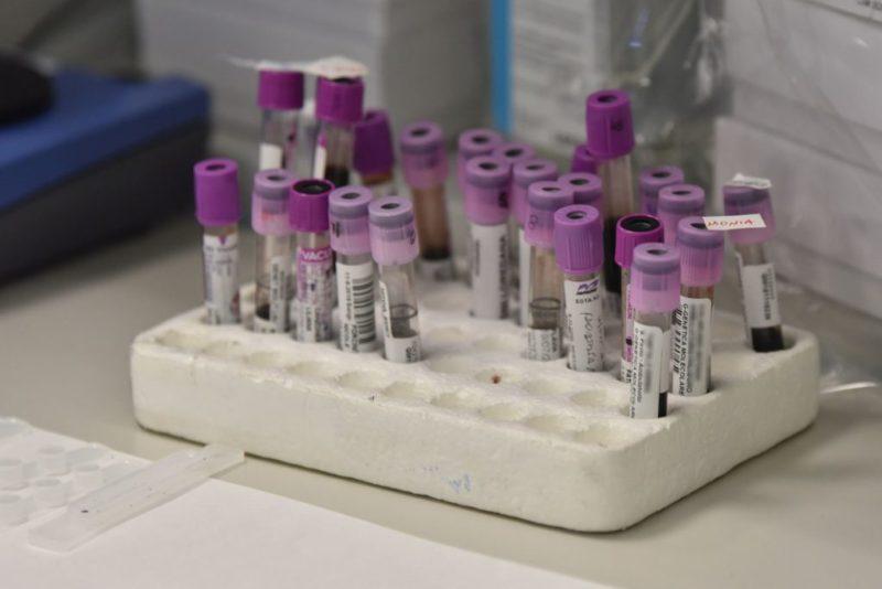 Coronavirus, sale a 7 il numero delle vittime in Italia