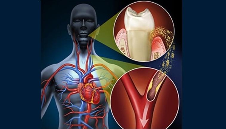 Danno cardiovascolare, uno studio sull'influenza della parodontite: che correlazione c'è?