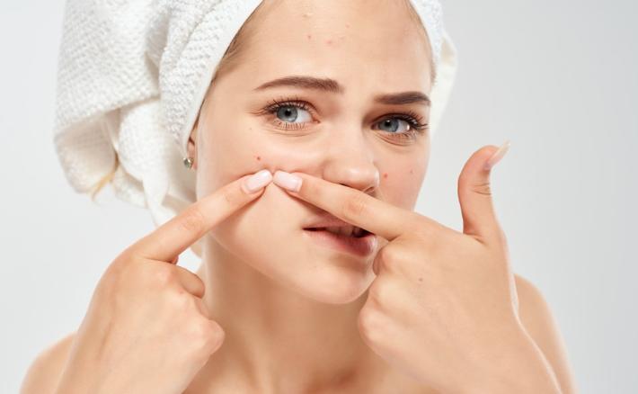 Acne e cura della pelle, cosa si può fare e cosa si dovrebbe evitare: i consigli dello specialista