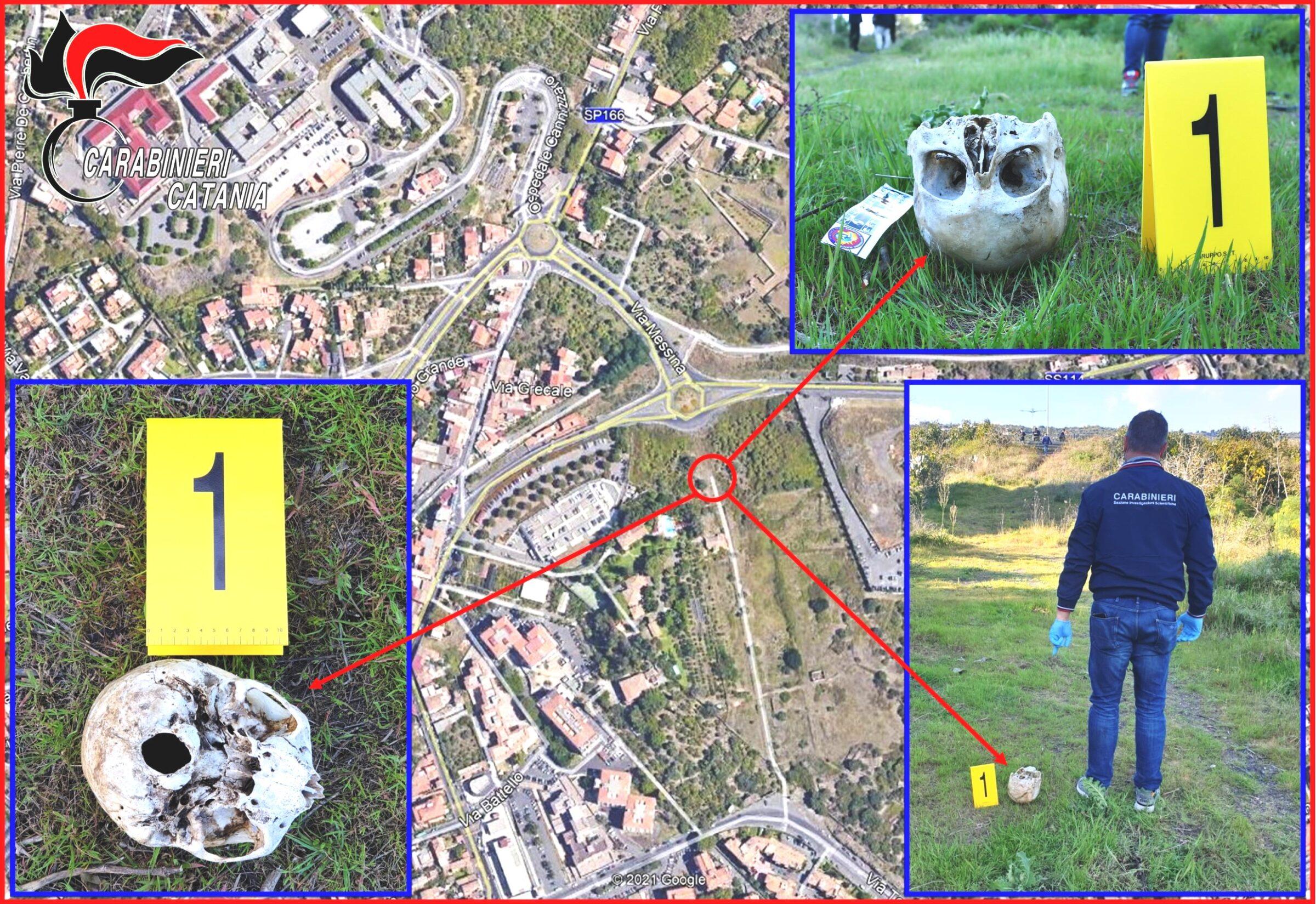 Shock a Catania, teschio umano rinvenuto nei pressi del Cannizzaro: di chi sono quei resti?