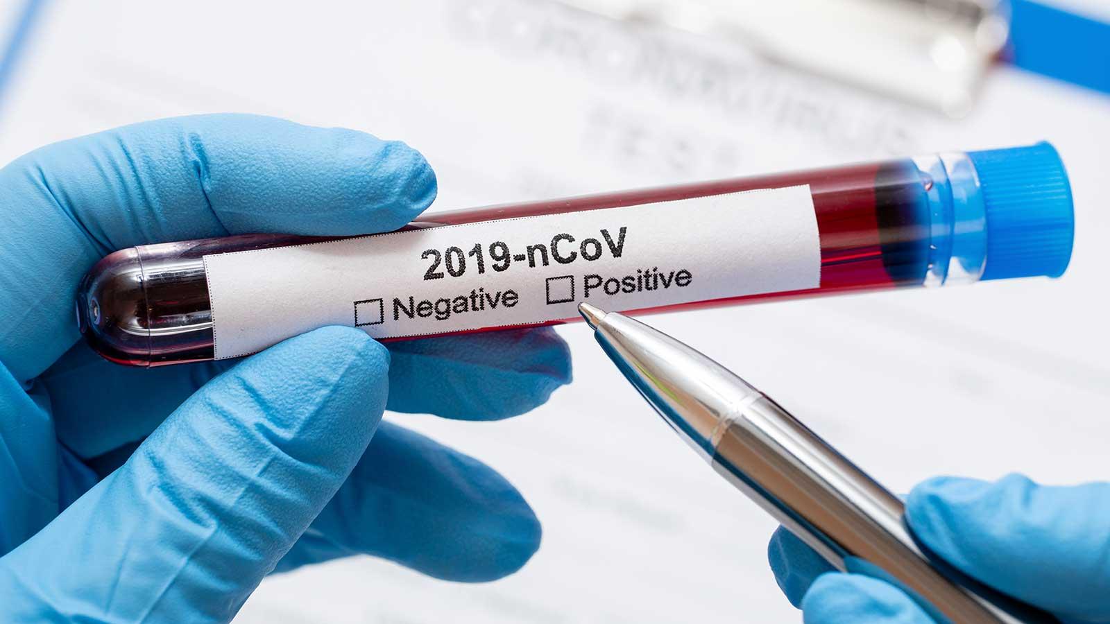 In Sicilia netto miglioramento dei casi di Coronavirus: lo dice la Fondazione Gimbe