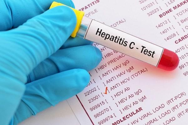Epatite C, entro 5 anni potrebbe esserci un vaccino efficace: gli ultimi studi e i dati